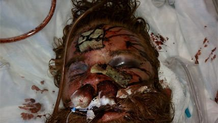 Large image on homepages