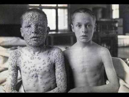 Smallpox boys