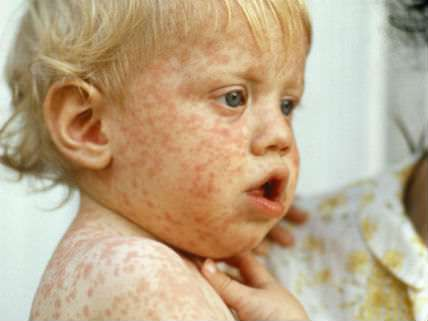 Immune Compromised Woman Dies of Measles: Are the Unvaccinated