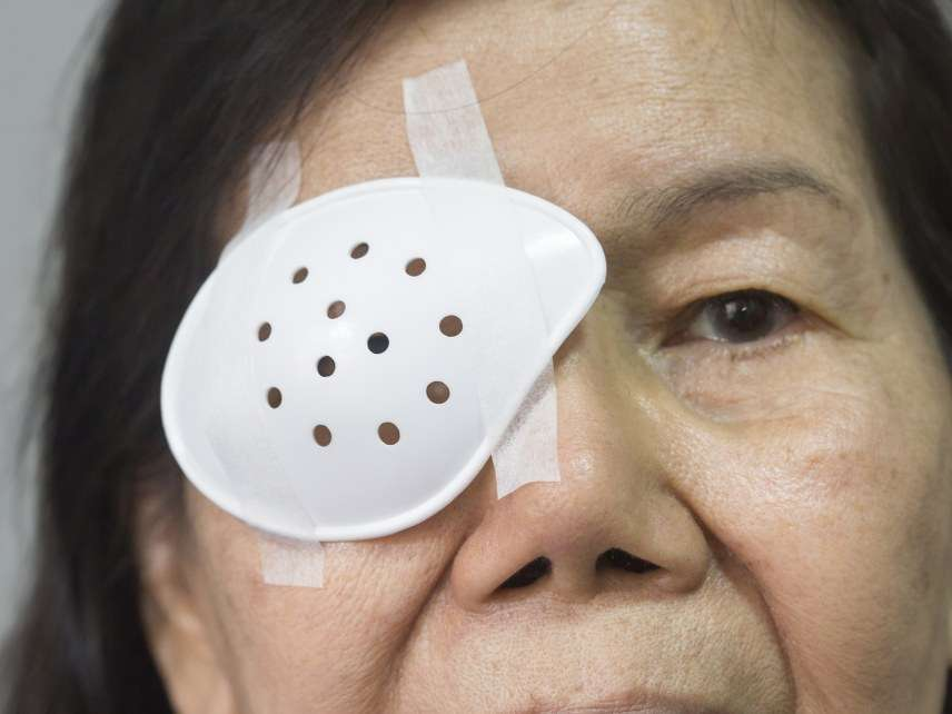 Cataract patch