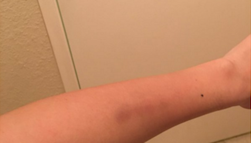 Michelle Fields' arm. ||| Michelle Fields